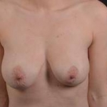 Breast Augmentation Mastopexy - Case #31 Before