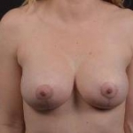 Breast Augmentation Mastopexy - Case #31 After