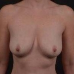 Breast Augmentation Mastopexy - Case #29 Before