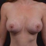 Breast Augmentation Mastopexy - Case #29 After