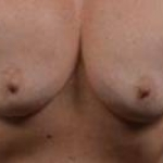 Mastopexy Augmentation - Case #21 Before