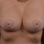 Mastopexy Augmentation - Case #21 After