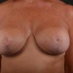 Breast Augmentation Mastopexy - Case #13 After