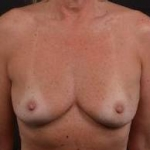 Immediate Breast Reconstruction - Skin Sparring - Case #23 Before
