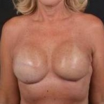 Immediate Breast Reconstruction - Skin Sparring - Case #23 After