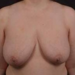 Immediate Breast Reconstruction - Skin Sparring - Case #21 Before