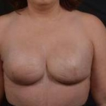 Immediate Breast Reconstruction - Skin Sparring - Case #21 After