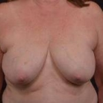 Immediate Breast Reconstruction - Skin Sparring - Case #19 Before