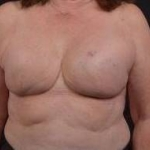 Immediate Breast Reconstruction - Skin Sparring - Case #19 After