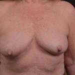 Immediate Breast Reconstruction - Skin Sparring - Case #17 Before