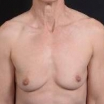 Immediate Breast Reconstruction - Skin Sparring - Case #21A Before