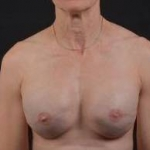 Immediate Breast Reconstruction - Skin Sparring - Case #21A After
