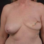 Delayed Breast Reconstruction - Case #9 Before