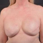 Delayed Breast Reconstruction - Case #9 After
