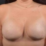 Immediate Breast Reconstruction - Skin Sparring - Case #15 After