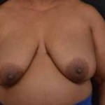 Immediate Breast Reconstruction - Skin Sparring - Case #12 Before