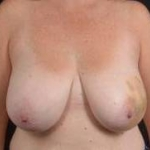 Immediate Breast Reconstruction - Skin Sparring - Case #5 Before