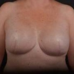 Immediate Breast Reconstruction - Skin Sparring - Case #5 After