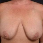 Immediate Breast Reconstruction - Skin Sparring - Case #4 Before