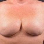 Immediate Breast Reconstruction - Skin Sparring - Case #4 After