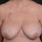 Immediate Breast Reconstruction - Skin Sparring - Case #3 Before