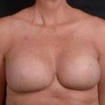 Immediate Breast Reconstruction - Skin Sparring - Case #3 After