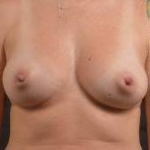 Immediate Breast Reconstruction - Skin Sparring - Case #10 Before
