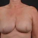 Immediate Breast Reconstruction - Skin Sparring - Case #8 After