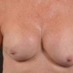 Immediate Breast Reconstruction - Skin Sparring - Case #7 Before
