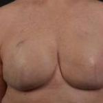 Immediate Breast Reconstruction - Skin Sparring - Case #6 After