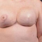 Immediate Breast Reconstruction - Skin Sparing - Case #2 After