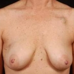 Immediate Breast Reconstruction - Skin Sparing - Case #1 Before
