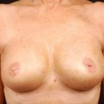 Immediate Breast Reconstruction - Skin Sparing - Case #1 After