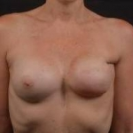 Reconstructive Breast Revision - Case #28 Before
