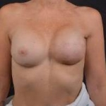 Reconstructive Breast Revision - Case #28 After