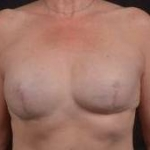 Reconstructive Breast Revision - Case #25 Before
