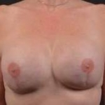 Reconstructive Breast Revision - Case #25 After
