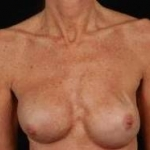 Reconstructive Breast Revision - Case #20 Before