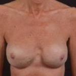 Reconstructive Breast Revision - Case #20 After