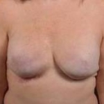 Reconstructive Breast Revision - Case #30 Before