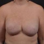 Reconstructive Breast Revision - Case #30 After