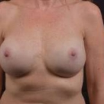 Reconstructive Breast Revision - Case #29 After