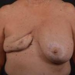 Reconstructive Breast Revision - Case #22 Before