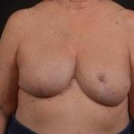 Reconstructive Breast Revision - Case #22 After