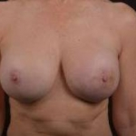 Breast Reconstruction Revision - Case #2 After