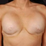 Reconstructive Breast Revision - Case #1 Before