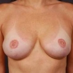 Reconstructive Breast Revision - Case #1 After