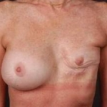 Reconstructive Breast Revision - Case #2A Before