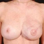 Reconstructive Breast Revision - Case #2A After