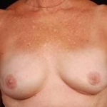 Reconstructive Breast Revision - Case #3 After